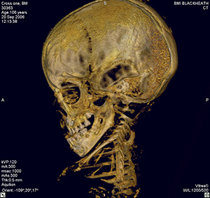British Museum mummy with broken jaw